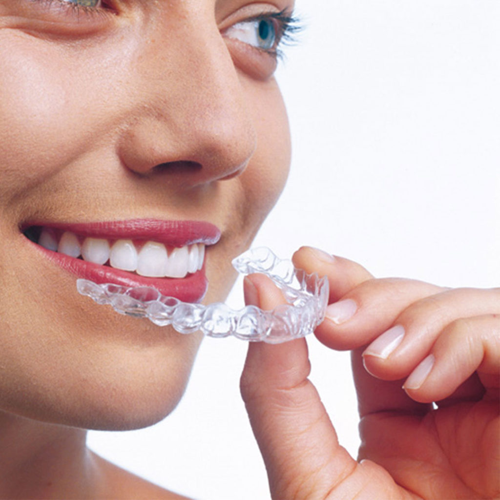 invisalign-kraków-dentysta