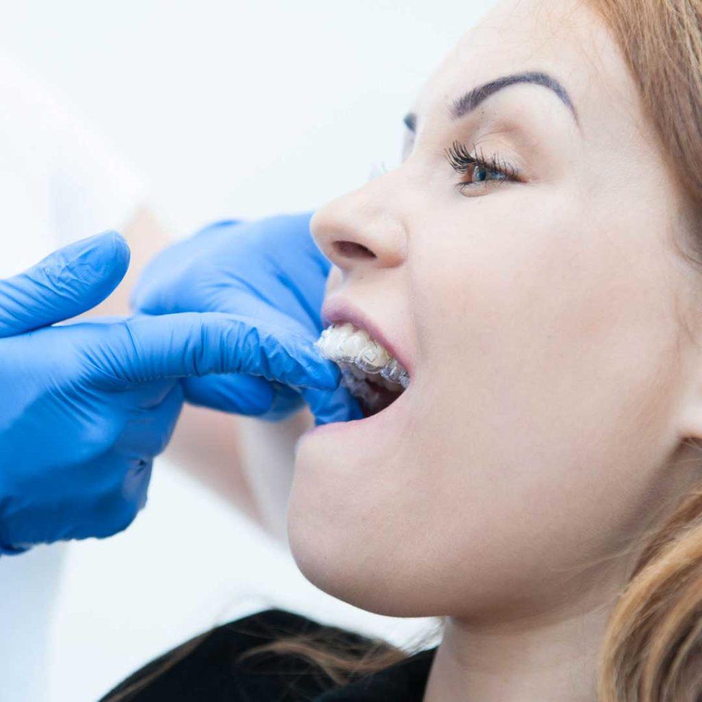 nakładki na zęby kraków